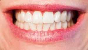Bursa'nın En İyi Ortodonti Tedavi Merkezi