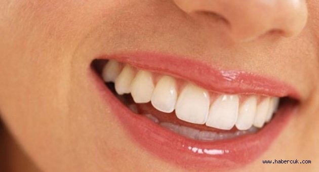 Güldüğünüzde diş etiniz görünüyorsa...